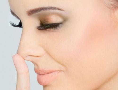Deguna-lūpu trijstūra krunku korekcija ar hialuronskābes preparātu