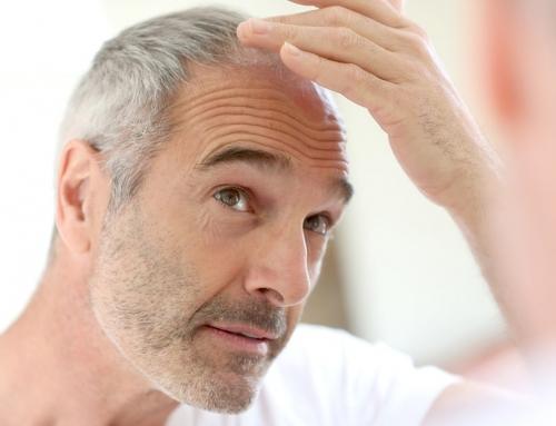 Mezoterapija galvas ādai