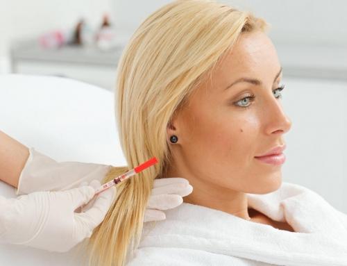 PRP terapija – alopēcijas jeb matu izkrišanas terapija